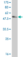 WB - HDAC7A Antibody (monoclonal) (M01) AT2341a
