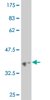 WB - HELZ Antibody (monoclonal) (M02) AT2348a