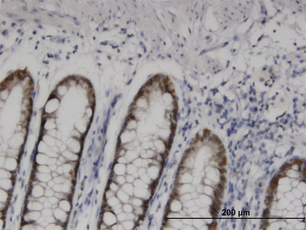 IHC - HOXD11 Antibody (monoclonal) (M10) AT2427a