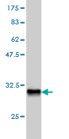 WB - HOXD8 Antibody (monoclonal) (M01) AT2429a
