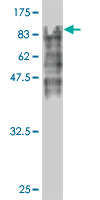 WB - HSGT1 Antibody (monoclonal) (M02) AT2443a