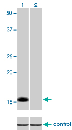 WB - ID1 Antibody (monoclonal) (M02) AT2473a