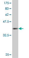 WB - IF Antibody (monoclonal) (M01) AT2482a