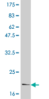 WB - IL6 Antibody (monoclonal) (M01) AT2520a