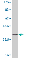 WB - IL6ST Antibody (monoclonal) (M02) AT2523a