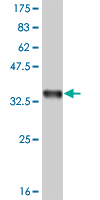 WB - IL8 Antibody (monoclonal) (M04) AT2525a