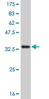 WB - IL8 Antibody (monoclonal) (M08) AT2526a