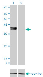 E - ISL1 Antibody (monoclonal) (M01) AT2560a