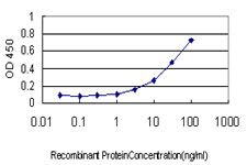 E - ITGB2 Antibody (monoclonal) (M01) AT2568a