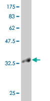 WB - KLF1 Antibody (monoclonal) (M04) AT2625a