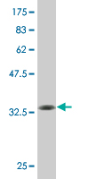 WB - KLF1 Antibody (monoclonal) (M05) AT2626a