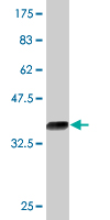 WB - KLF12 Antibody (monoclonal) (M01) AT2630a