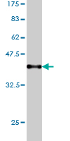 WB - KNTC1 Antibody (monoclonal) (M01) AT2645a