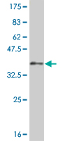 WB - LHX5 Antibody (monoclonal) (M05) AT2708a