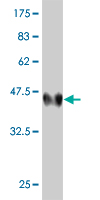 WB - LMO4 Antibody (monoclonal) (M01) AT2726a