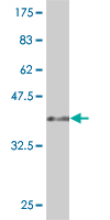 WB - LYPLA3 Antibody (monoclonal) (M01) AT2755a