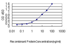 E - MAD2L1 Antibody (monoclonal) (M01) AT2758a