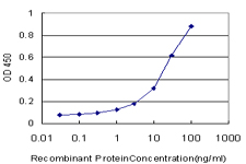E - MARCH6 Antibody (monoclonal) (M02) AT2800a