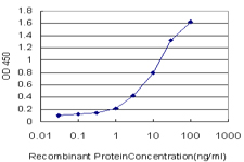 E - MCCC1 Antibody (monoclonal) (M01) AT2816a