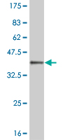 WB - MEOX1 Antibody (monoclonal) (M02) AT2843a
