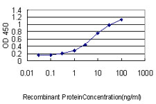 E - MIF Antibody (monoclonal) (M01) AT2870a