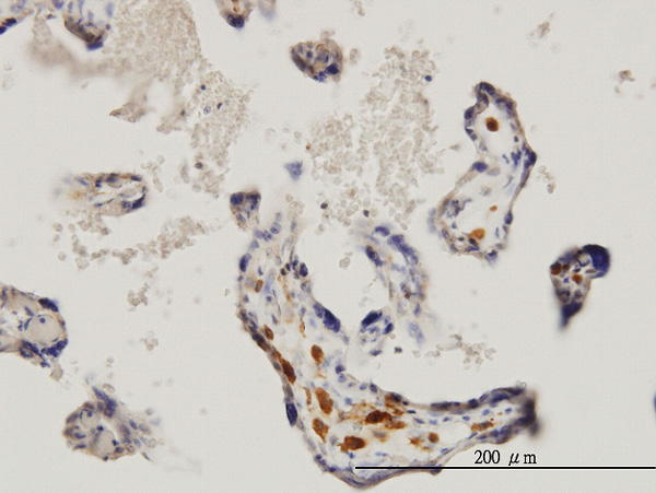 IHC - MKNK1 Antibody (monoclonal) (M06) AT2872a