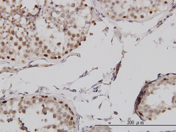 IHC - MLH1 Antibody (monoclonal) (M02) AT2879a