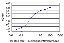 E - MPHOSPH10 Antibody (monoclonal) (M02) AT2891a