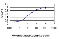 E - MS4A1 Antibody (monoclonal) (M01) AT2907a