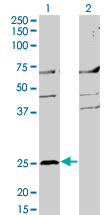 WB - MS4A2 Antibody (monoclonal) (M02) AT2909a