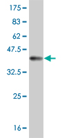 WB - MSLN Antibody (monoclonal) (M02) AT2917a