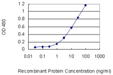 E - MTHFD1L Antibody (monoclonal) (M01) AT2927a