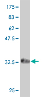 WB - MTHFR Antibody (monoclonal) (M06) AT2930a