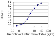 E - MTSS1 Antibody (monoclonal) (M01) AT2933a