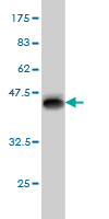 WB - MYPN Antibody (monoclonal) (M04) AT2966a