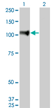 WB - NELL1 Antibody (monoclonal) (M01) AT3020a