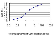 E - NKX2-5 Antibody (monoclonal) (M01) AT3056a