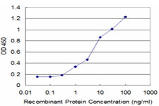 E - NME2 Antibody (monoclonal) (M11) AT3069a