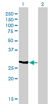 WB - NQO1 Antibody (monoclonal) (M01) AT3089a