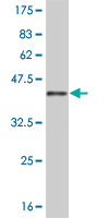 WB - NR4A2 Antibody (monoclonal) (M10) AT3109a