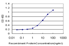 E - NUDT5 Antibody (monoclonal) (M04) AT3133a