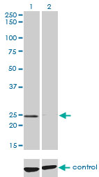 WB - NUDT5 Antibody (monoclonal) (M04) AT3133a