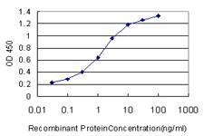 E - OCRL Antibody (monoclonal) (M02) AT3144a