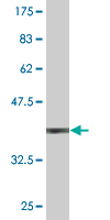 WB - ORF1-FL49 Antibody (monoclonal) (M02) AT3155a
