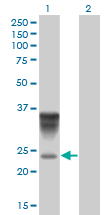 WB - ORM1 Antibody (monoclonal) (M01) AT3156a