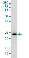 WB - PCTP Antibody (monoclonal) (M01) AT3241a