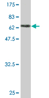 WB - PEPD Antibody (monoclonal) (M01) AT3268a