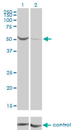 WB - PGM1 Antibody (monoclonal) (M01) AT3282a