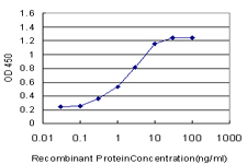 E - PGR Antibody (monoclonal) (M01) AT3285a