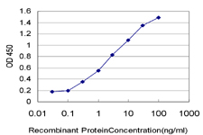 E - PGR Antibody (monoclonal) (M04) AT3286a